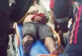 CENA FORTE: Moradores decepam mão de sujeito que teria assaltado senhora – VEJA VÍDEO