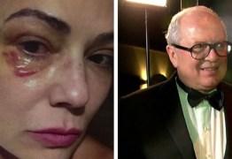 'Leizinha vagabunda é essa tal de Maria da Penha', diz ex-namorado de Luiza Brunet
