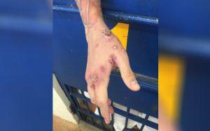 papuda doença contagiosa 300x188 - Doenças de pele na Papuda aumentaram 202% em 11 dias