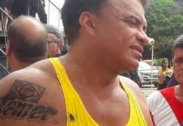 Tatuagem do deputado Wladimir Costa é temporária, dizem especialistas