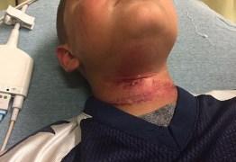 Menino de 8 anos é enforcado por adolescente em ataque racista