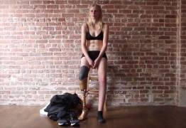 Modelo que perdeu perna por causa de absorvente interno pode perder a outra