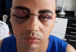 Jovem desabafa após ter rosto cortado por linha com cerol