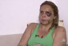 Ex-namorada de humorista denuncia agressões