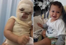Bebê tem rosto desfigurado por água fervendo e pais fazem apelo: 'Desespero'