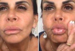 Gretchen responde à criticas sobre sua boca: 'beijo e faço mais coisas com ela'