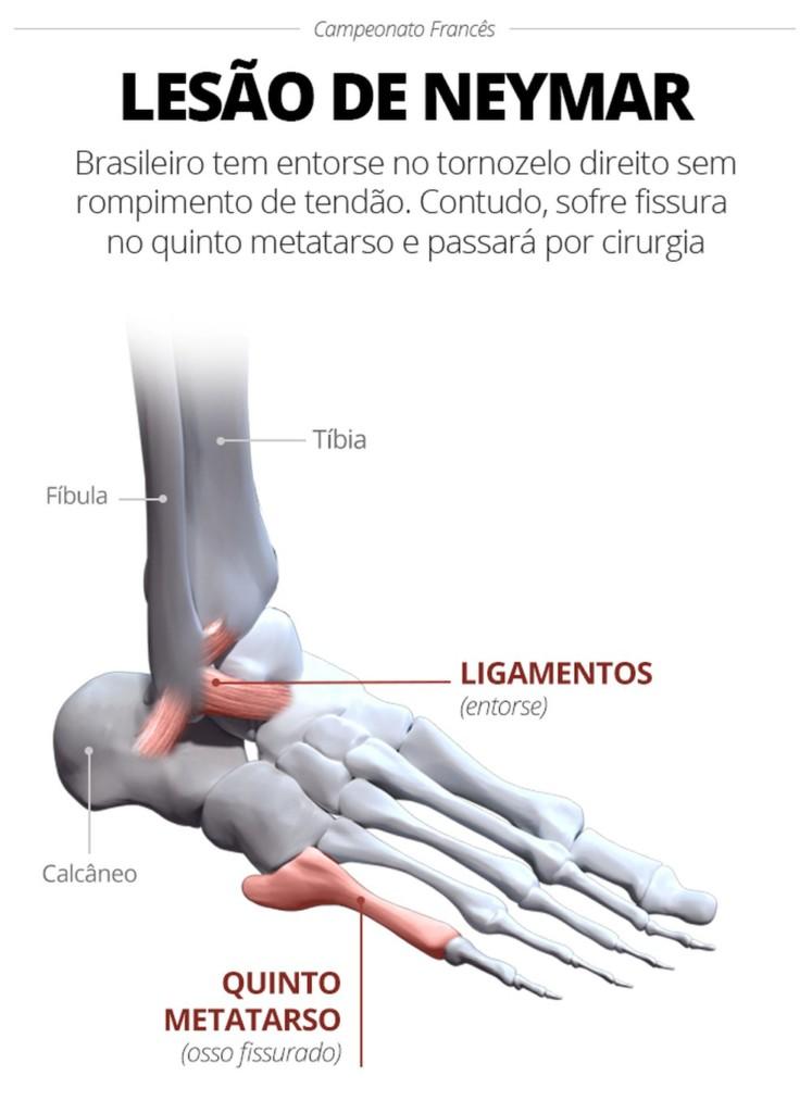 info lesao neymar - Pai indica que Neymar deve fazer cirurgia e ficará até 8 semanas fora