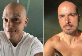 Ator Léo Rosa mostra cabelo crescendo após tratamento de câncer
