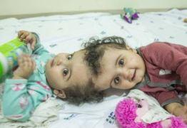 Segunda cirurgia de meninas unidas pela cabeça é bem-sucedida