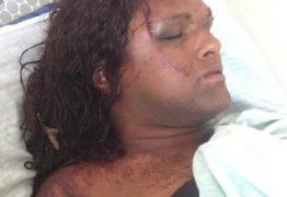Transsexual é agredida a pauladas e vítima é encontrada desmaiada em matagal