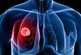 Cientistas descobrem composto que imobiliza célula do câncer e impede metástase