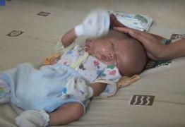 VEJA VÍDEO: Bebê nasce com dois rostos e dois cérebros na Indonésia