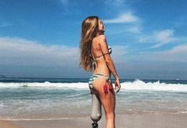 Modelo que perdeu a perna aprova olhares na rua: 'Importante' – VEJA FOTOS