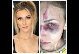 'VOCÊ NÃO ACEITA, O HOMEM QUE  TEM MAIS DOMINÂNCIA': Brasileira é agredida nos EUA e grava parte de briga com namorado; Ouça