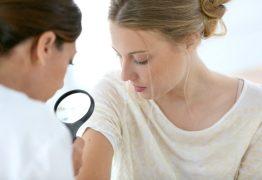 Médico desmistifica suposições sobre a psoríase e garante que doença não é transmissível