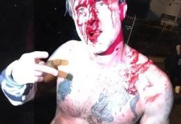 """VEJA VÍDEO: Após apanhar em luta, ator de """"Pânico"""" brinca que vai começar a dançar zumba"""