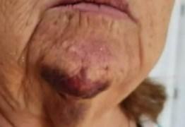 Filho bate a ateia fogo na própria mãe de 75 anos