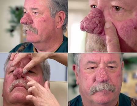 xblog nose.jpg.pagespeed.ic .e9XTqm50tI - Homem recorre a especialista para mudar nariz que 'assusta', VEJA VÍDEO