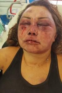 xelaine.jpg.pagespeed.ic .796BdEoaHg 200x300 - Reconstrução de rosto de mulher espancada vai durar seis meses, diz médico
