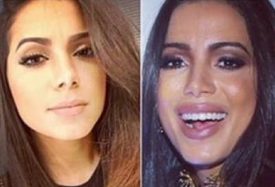 'Na França, querem o meu nariz', diz Anitta sobre cirurgias plásticas