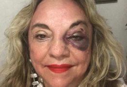 DAMA DE BATOM VERMELHO: Dra. Paula se recupera bem do acidente e mesmo com fratura facial continua vaidosa