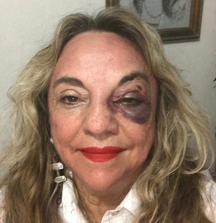 a2f34ca7 e7a7 4e08 b876 481417a7fb24 e1558197906240 - DAMA DE BATOM VERMELHO: Dra. Paula se recupera bem do acidente e mesmo com fratura facial continua vaidosa