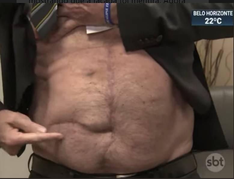 cicatriz bolsonaro 1 - Fotógrafo afirma que cicatriz exibida por Bolsonaro não é da facada, mas de cirurgia de diverticulite