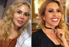 Joelma mostra antes e depois da harmonização facial