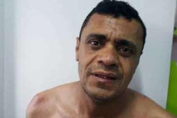 naom 5d30726e19cc4 1 - Inquérito desconstrói fake news de facada em Bolsonaro, diz delegado