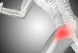 Osteoporose atinge 10 milhões de brasileiros e diagnóstico precoce é essencial para combater a doença, afirma ortopedista