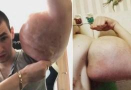'Popeye russo' faz apelo por cirurgia para salvar os braços 'deformados'