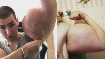 xblog popeye 2.jpg.pagespeed.ic .p0OjnuU61n 300x169 - 'Popeye russo' faz apelo por cirurgia para salvar os braços 'deformados'