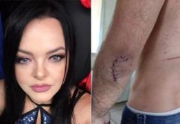 Cantora de dupla sertaneja é agredida pelo ex, e irmãos atropelam suspeito