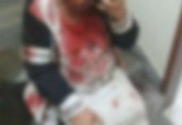 Mulher sofre traumatismo craniano ao ser agredida pelo filho