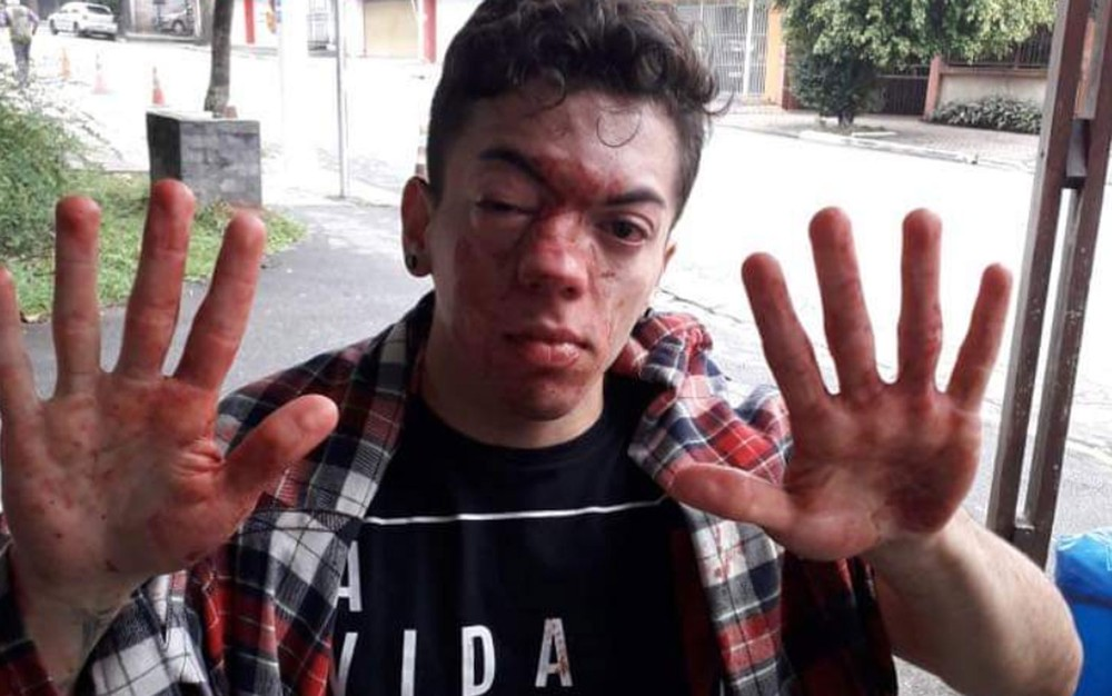 cello08 - 'SELINHOS': Ator diz que foi agredido por motorista de ônibus e denuncia homofobia