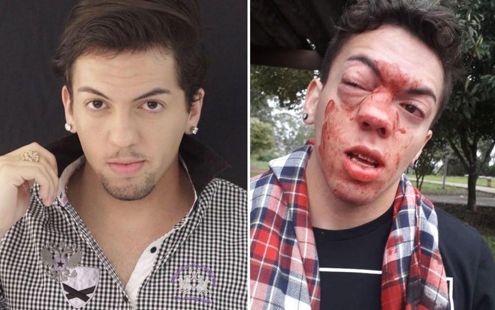 cello09 - 'SELINHOS': Ator diz que foi agredido por motorista de ônibus e denuncia homofobia