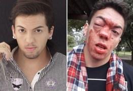 'SELINHOS': Ator diz que foi agredido por motorista de ônibus e denuncia homofobia