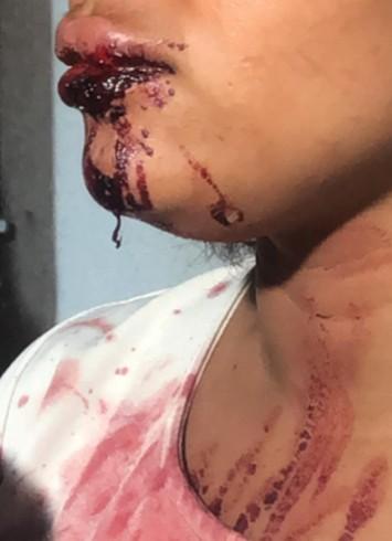 jovem - Suspeito de agredir companheira de 17 anos em JP é liberado em audiência de custódia