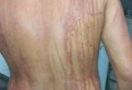 Turista fica com manchas no corpo após banho em praia do Nordeste