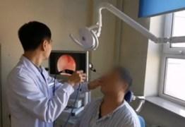 Dente cresce dentro de nariz e homem só descobre 20 anos depois