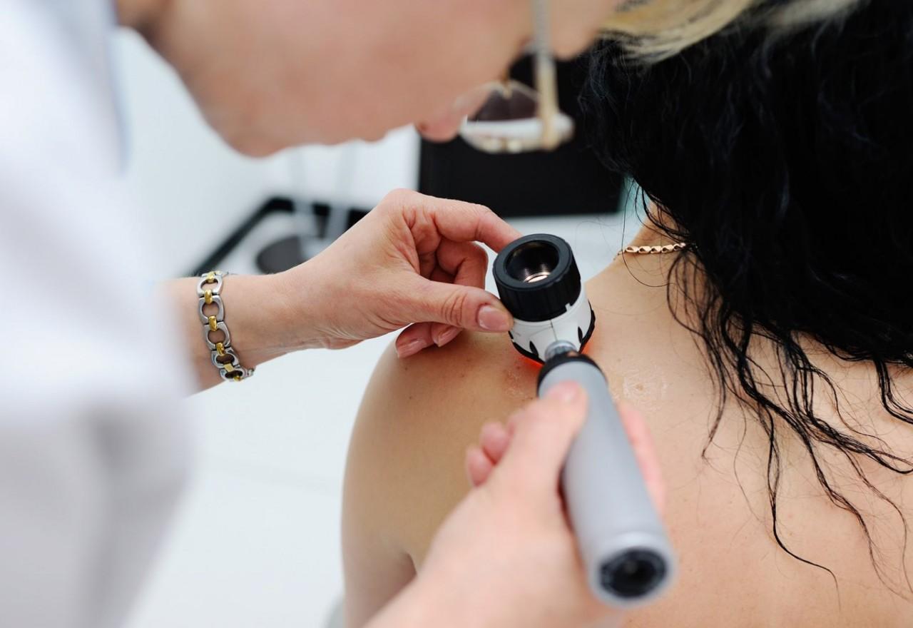 ALBUM 1067 - Paraíba estima 1.700 novos casos de câncer de pele e dermatologista explica como identificar doença