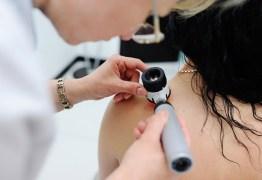 Paraíba estima 1.700 novos casos de câncer de pele e dermatologista explica como identificar doença