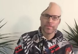 Rapper mostra que perdeu parte da cabeça após explosão em laboratório de drogas – VEJA DEPOIMENTO