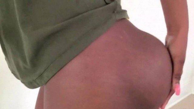 xblog jabrena 2.jpg.pagespeed.ic .L9nY3h9uH7 - Mulher vive drama com implantes de silicone nas nádegas