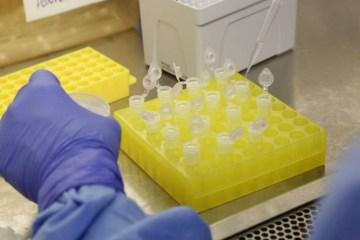 1 diagnostico laboratorial de casos suspeitos do novo coronavirus 2801209411 15411115 - BOA NOTÍCIA: Brasil tem apenas um caso suspeito do coronavírus