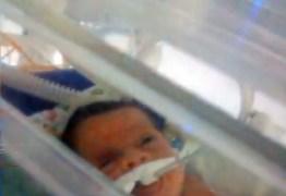 EM CAMPINA GRANDE: Bebê morre após supostamente cair de maca do Samu