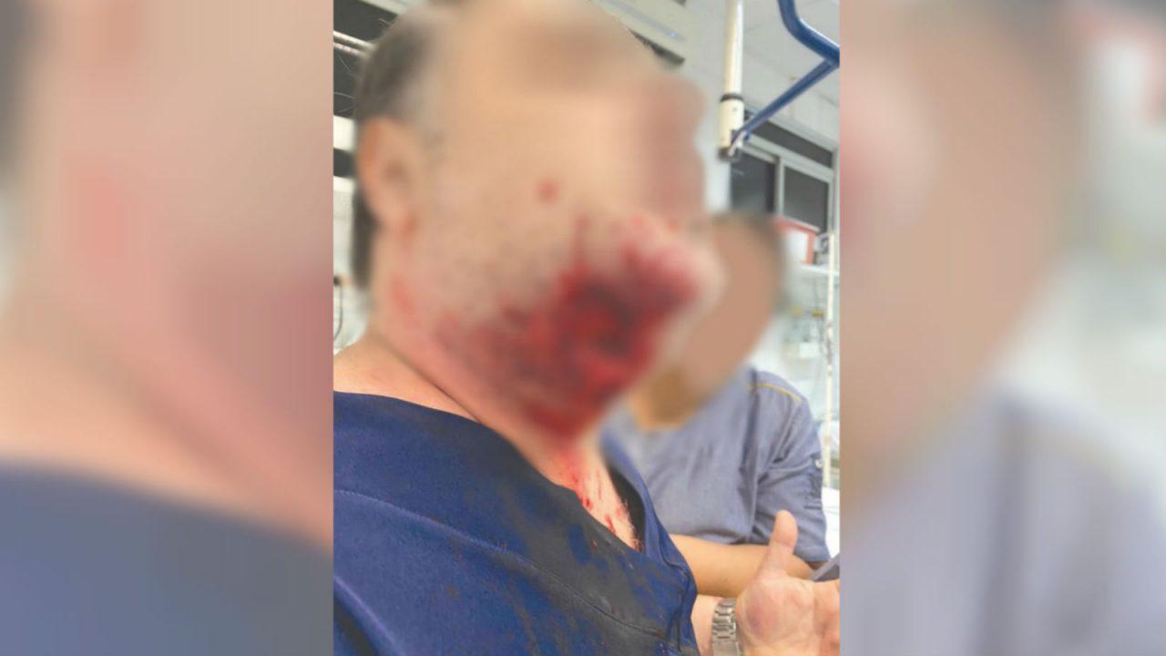 mordida 1280x720 - Paciente agride médica, outro paciente, quebra portas do pronto socorro e morde médico na jugular: 'Perdi a cabeça'