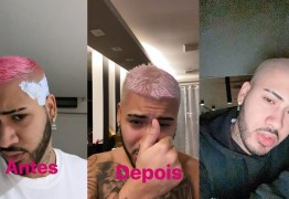 Kevinho mostra queda de cabelo após tintura: 'Não faça isso sem ajuda de um profissional' – VEJA VÍDEO