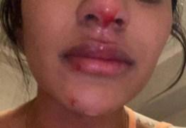 Namorada de jogador do Boca denuncia agressão durante quarentena – VEJA VÍDEOS