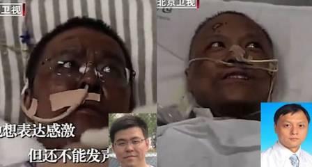 xblog chinese.jpg.pagespeed.ic .U1DkLf13pP - Pele do rosto de médicos chineses fica escura durante tratamento contra o coronavírus